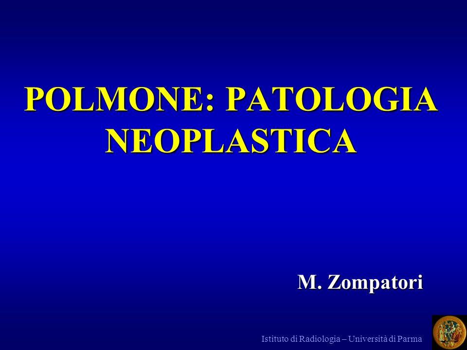 POLMONE: PATOLOGIA NEOPLASTICA
