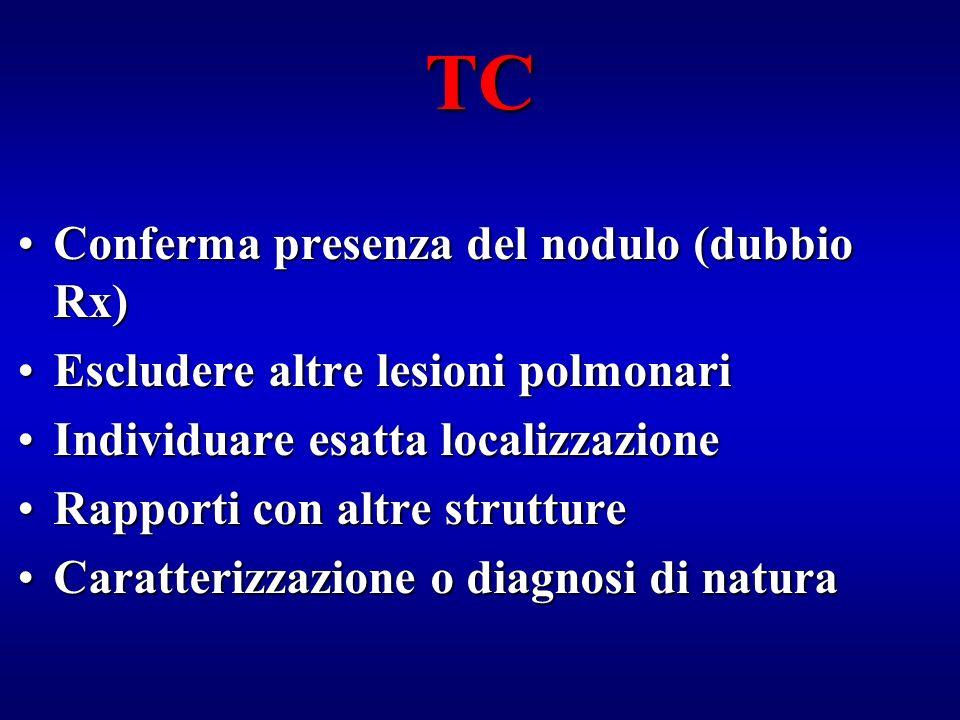 TC Conferma presenza del nodulo (dubbio Rx)