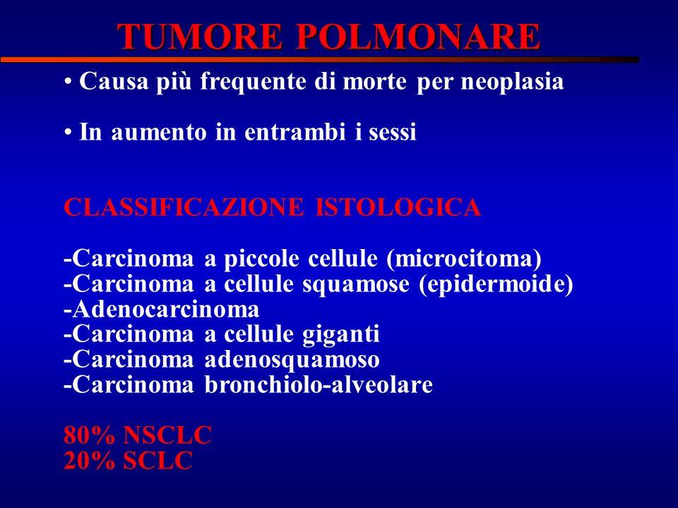 TUMORE POLMONARE Causa più frequente di morte per neoplasia