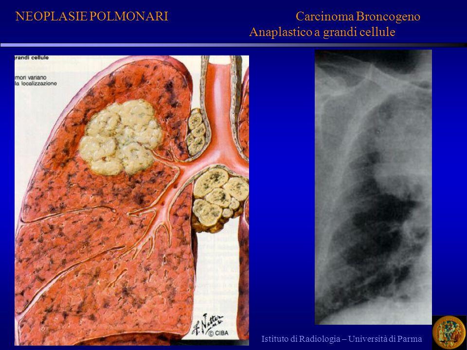 NEOPLASIE POLMONARI Carcinoma Broncogeno Anaplastico a grandi cellule