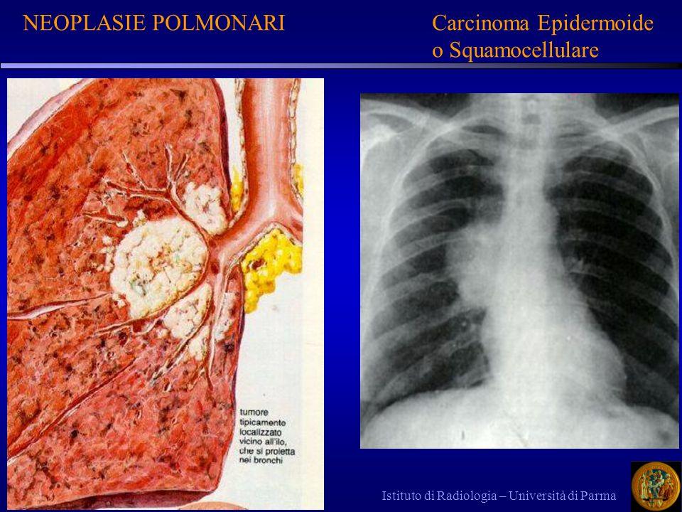 NEOPLASIE POLMONARI Carcinoma Epidermoide o Squamocellulare