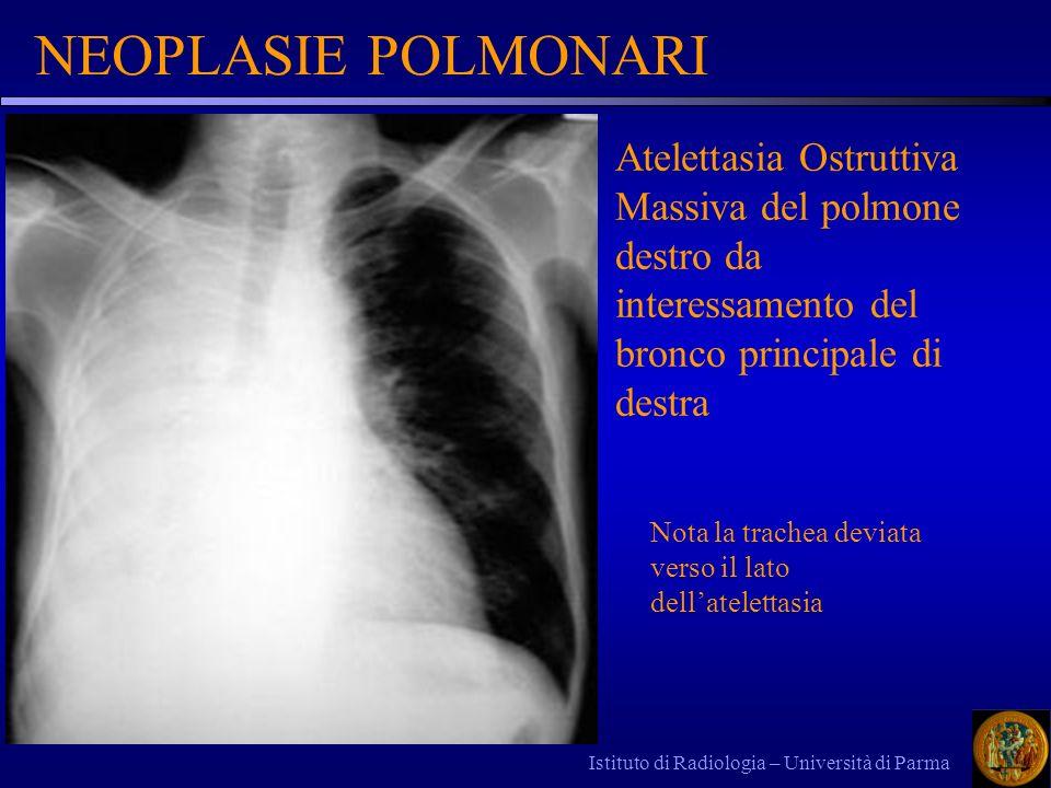 NEOPLASIE POLMONARI Atelettasia Ostruttiva Massiva del polmone destro da interessamento del bronco principale di destra.