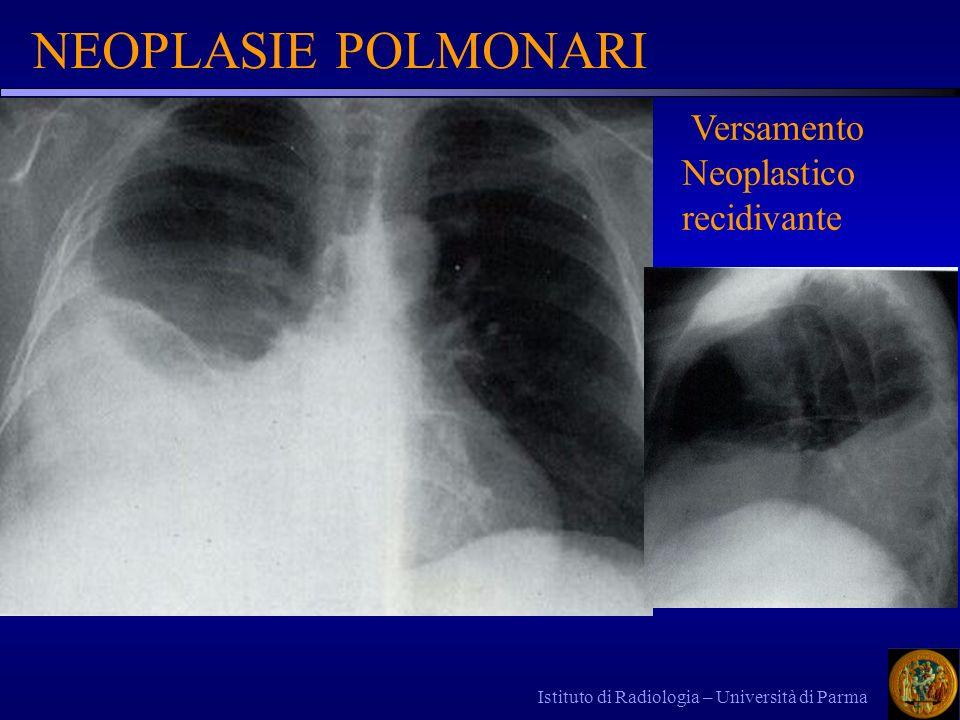 NEOPLASIE POLMONARI Versamento Neoplastico recidivante