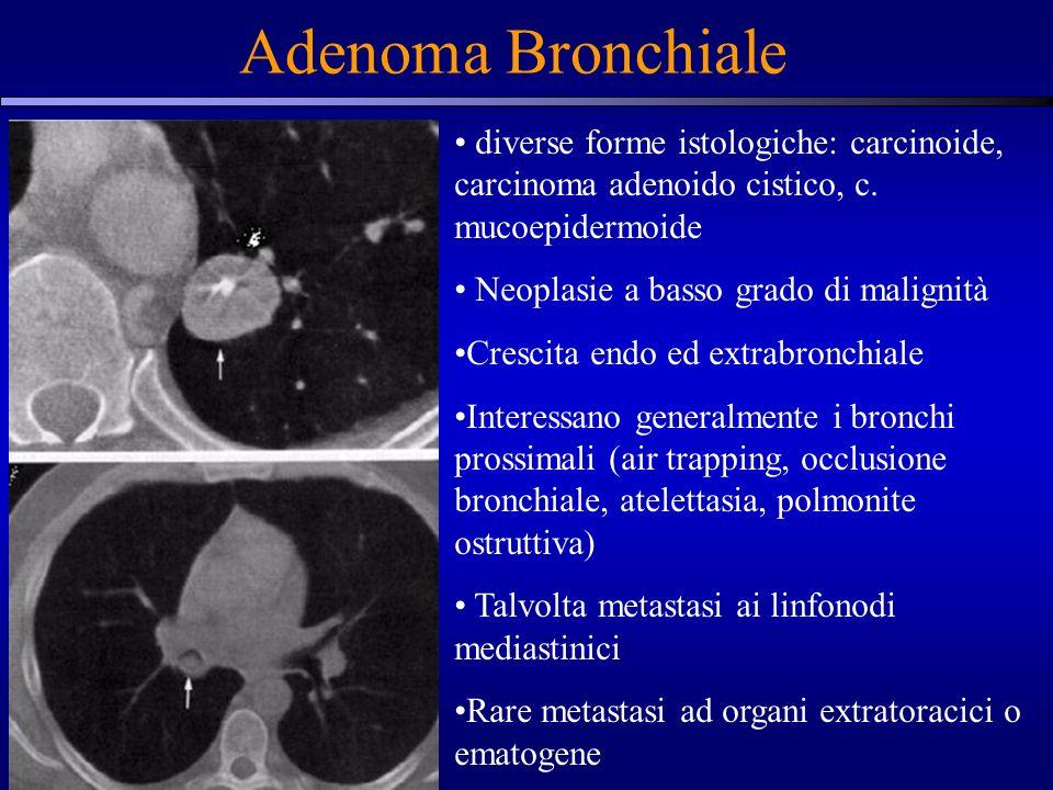 Adenoma Bronchiale diverse forme istologiche: carcinoide, carcinoma adenoido cistico, c. mucoepidermoide.