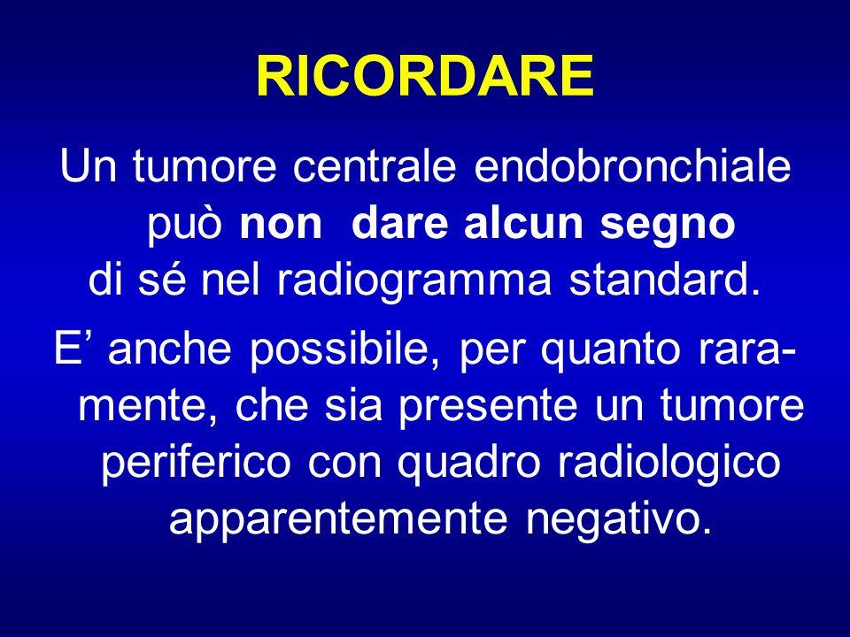 RICORDARE Un tumore centrale endobronchiale può non dare alcun segno