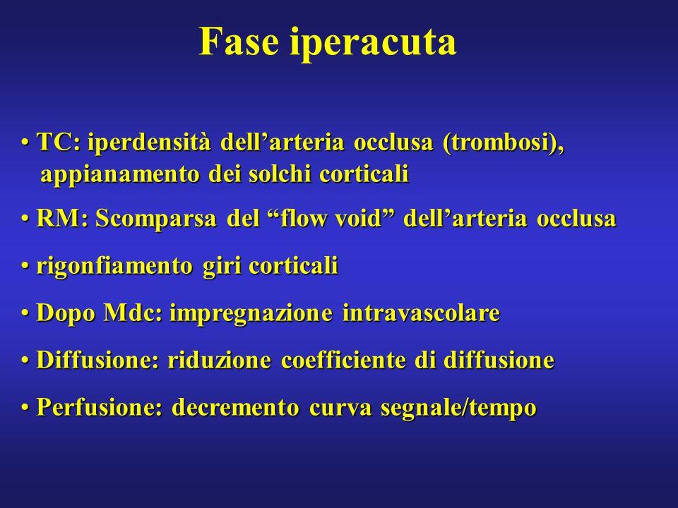 Fase iperacuta TC: iperdensità dell'arteria occlusa (trombosi),