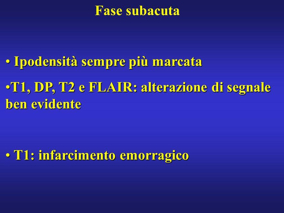 Fase subacuta Ipodensità sempre più marcata. T1, DP, T2 e FLAIR: alterazione di segnale ben evidente.