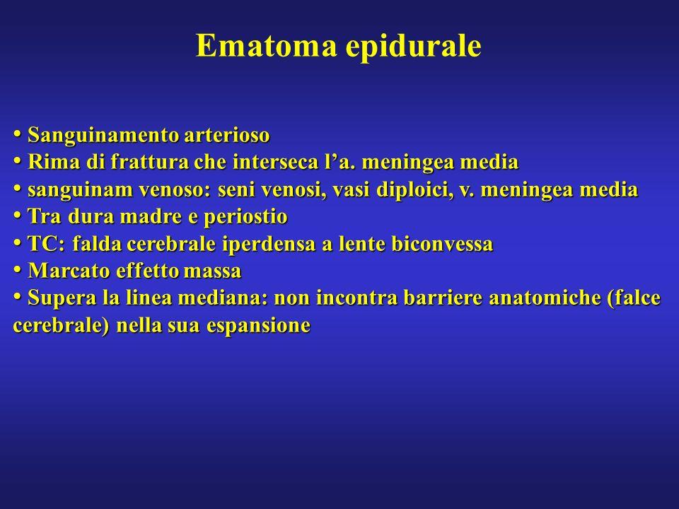 Ematoma epidurale Sanguinamento arterioso