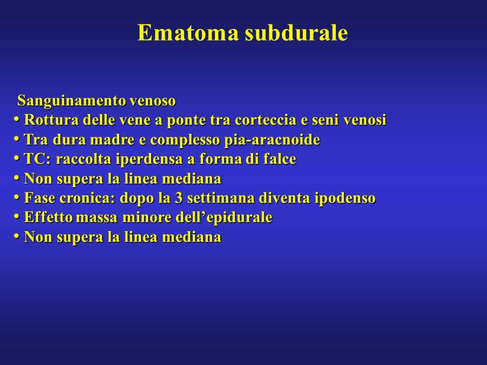 Ematoma subdurale Sanguinamento venoso