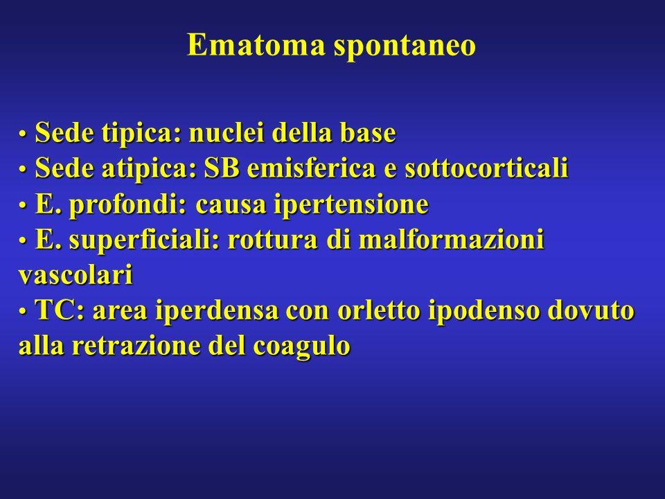 Ematoma spontaneo Sede tipica: nuclei della base