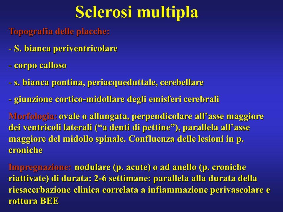 Sclerosi multipla Topografia delle placche: S. bianca periventricolare