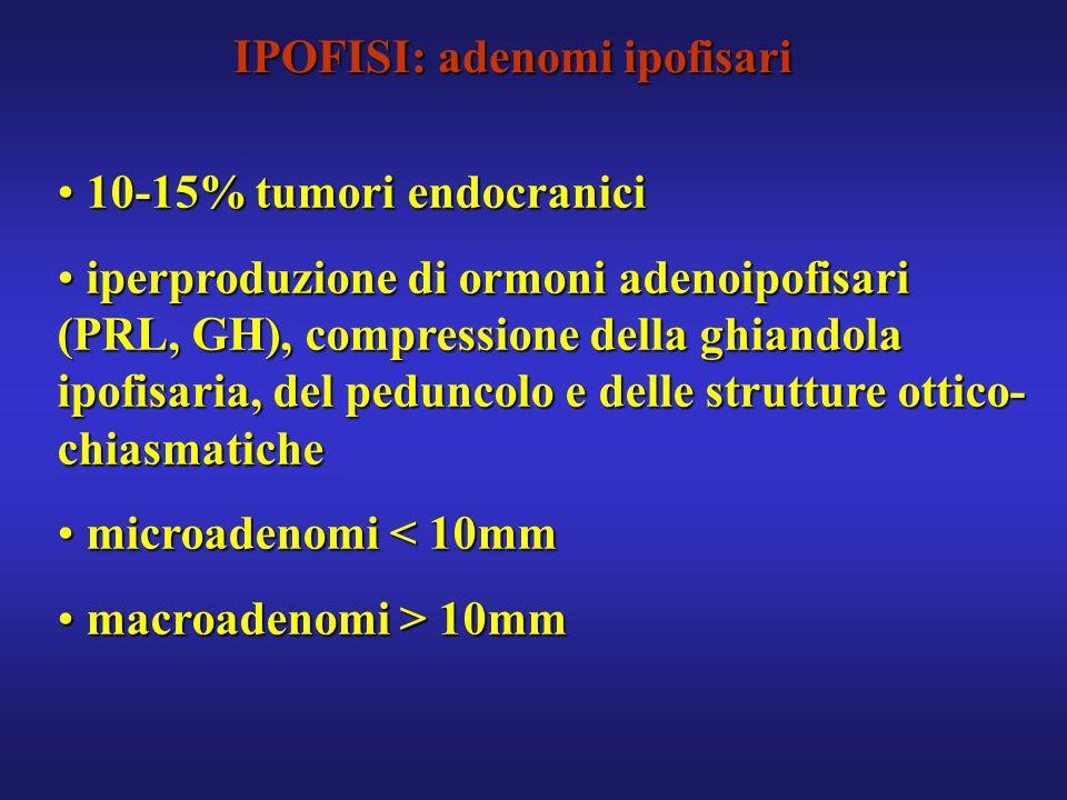 IPOFISI: adenomi ipofisari