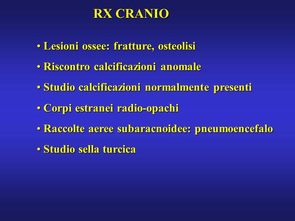 RX CRANIO Lesioni ossee: fratture, osteolisi