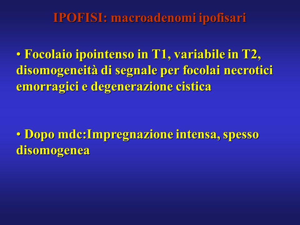 IPOFISI: macroadenomi ipofisari