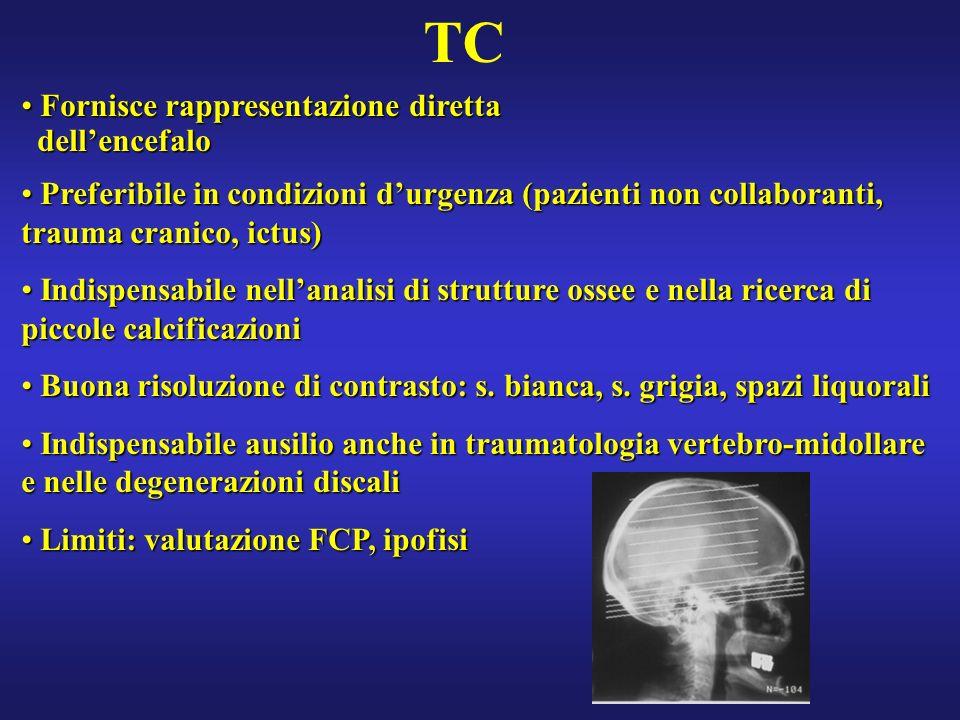 TC Fornisce rappresentazione diretta dell'encefalo