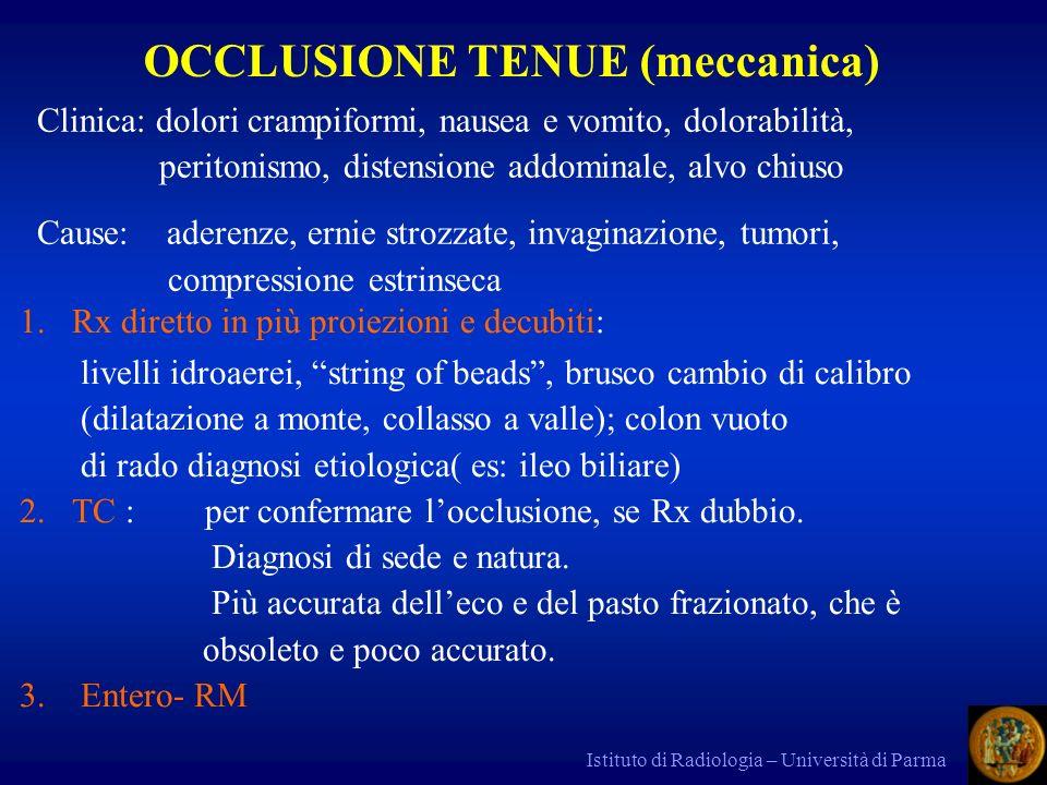 OCCLUSIONE TENUE (meccanica)