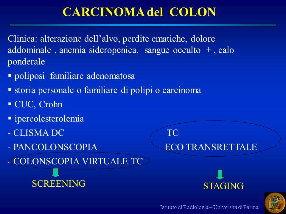 CARCINOMA del COLON Clinica: alterazione dell'alvo, perdite ematiche, dolore addominale , anemia sideropenica, sangue occulto + , calo ponderale.