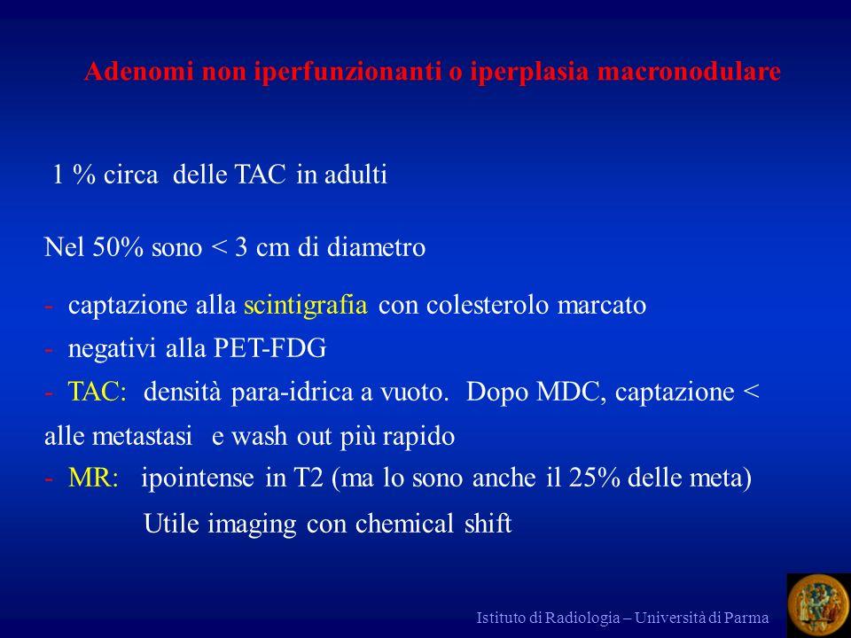 Adenomi non iperfunzionanti o iperplasia macronodulare