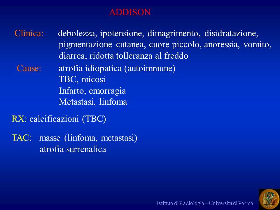 Clinica: debolezza, ipotensione, dimagrimento, disidratazione,