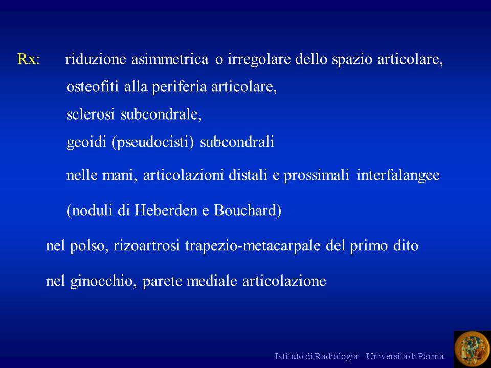 Rx: riduzione asimmetrica o irregolare dello spazio articolare,