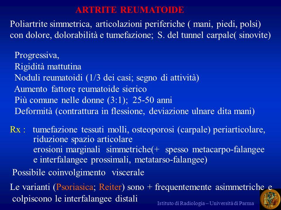 Noduli reumatoidi (1/3 dei casi; segno di attività)