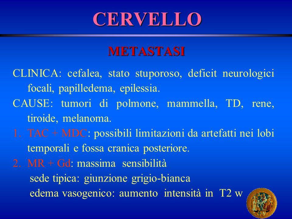 CERVELLO METASTASI. CLINICA: cefalea, stato stuporoso, deficit neurologici focali, papilledema, epilessia.