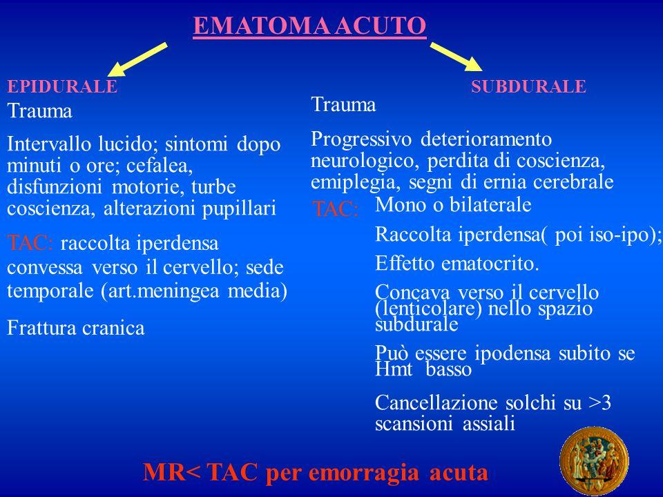 MR< TAC per emorragia acuta
