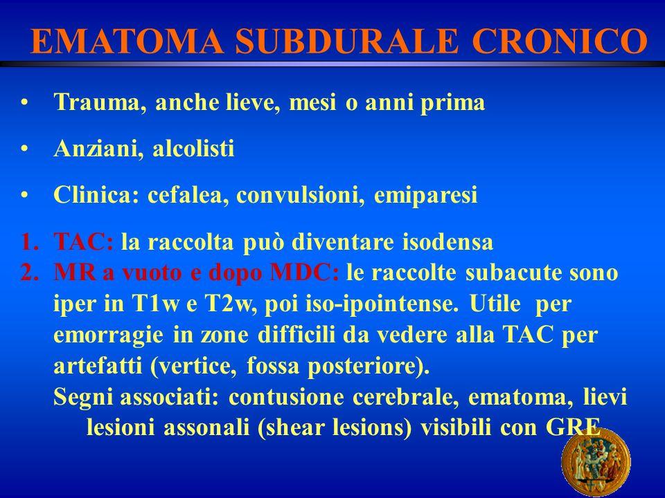 EMATOMA SUBDURALE CRONICO