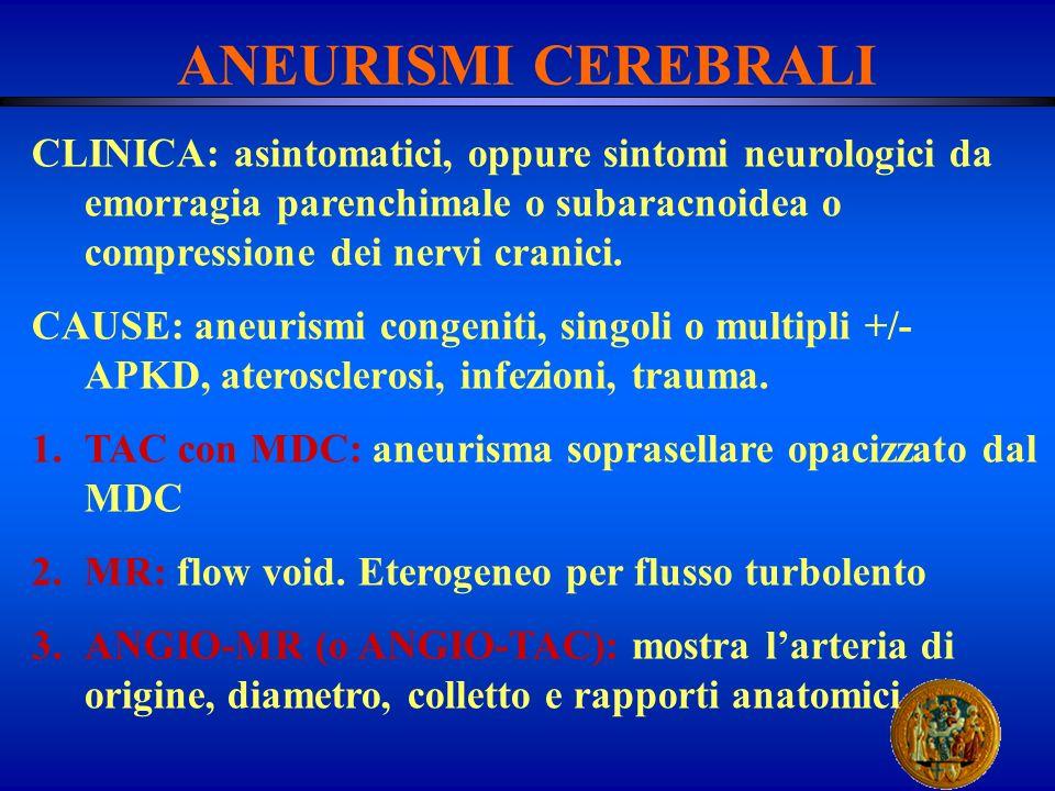 ANEURISMI CEREBRALI CLINICA: asintomatici, oppure sintomi neurologici da emorragia parenchimale o subaracnoidea o compressione dei nervi cranici.