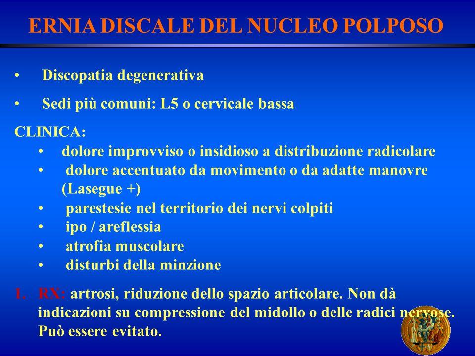 ERNIA DISCALE DEL NUCLEO POLPOSO