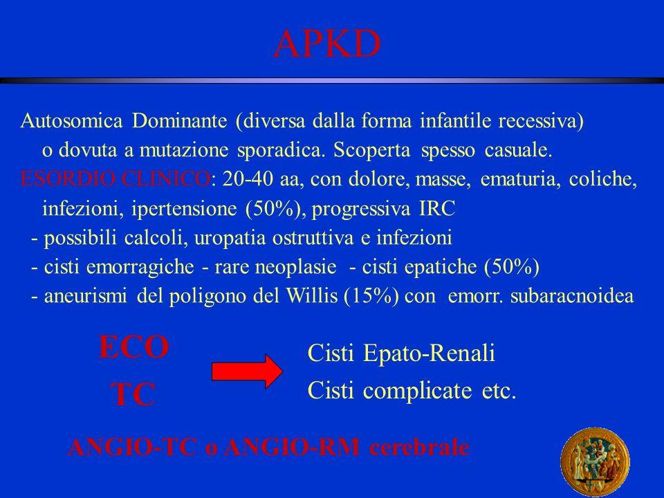 APKD ECO TC Cisti Epato-Renali Cisti complicate etc.