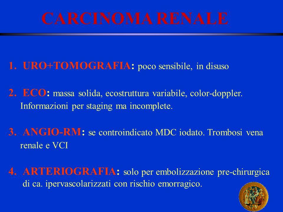 CARCINOMA RENALE URO+TOMOGRAFIA: poco sensibile, in disuso