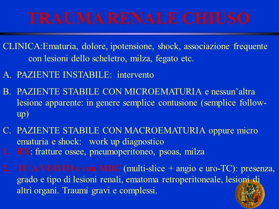 TRAUMA RENALE CHIUSO CLINICA:Ematuria, dolore, ipotensione, shock, associazione frequente. con lesioni dello scheletro, milza, fegato etc.