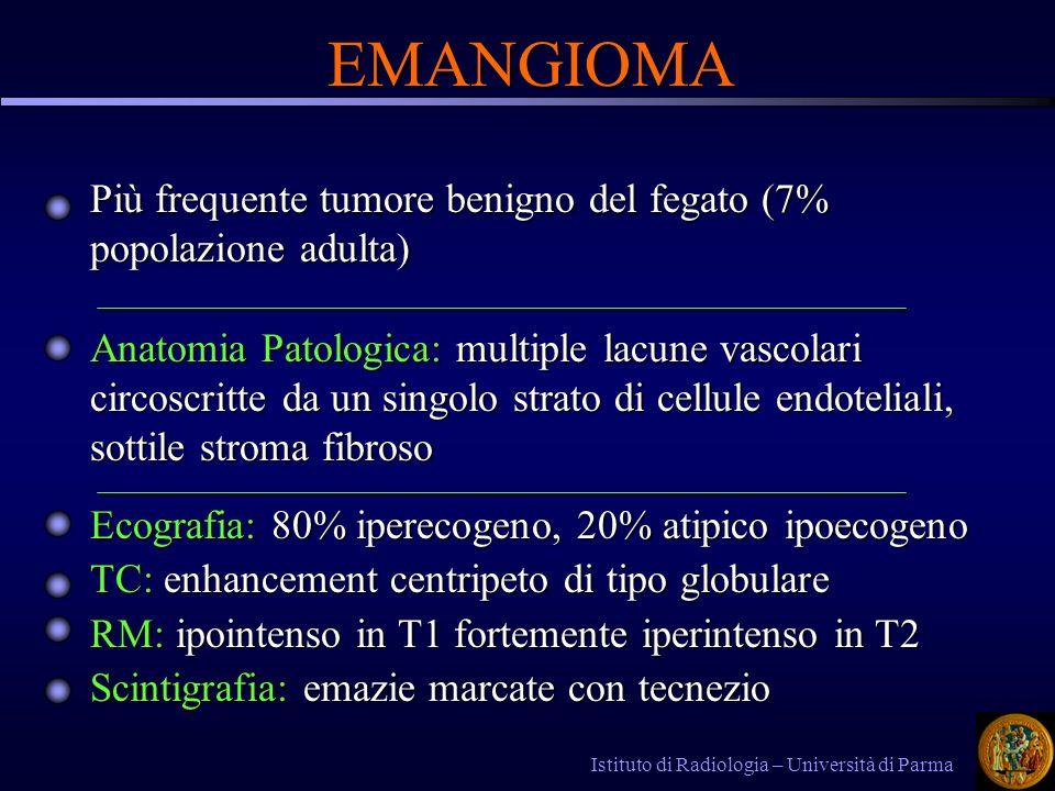 EMANGIOMA Più frequente tumore benigno del fegato (7% popolazione adulta)
