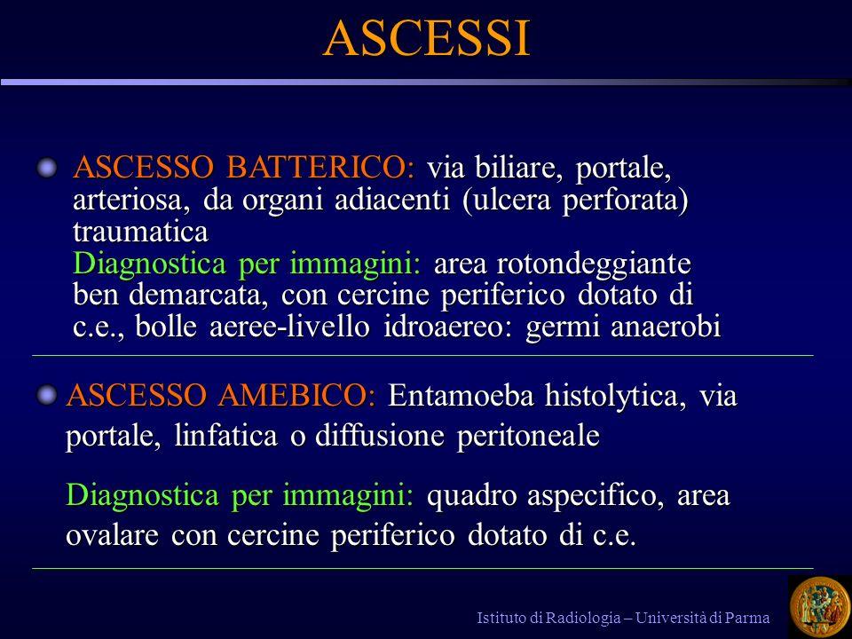 ASCESSI ASCESSO BATTERICO: via biliare, portale, arteriosa, da organi adiacenti (ulcera perforata) traumatica.
