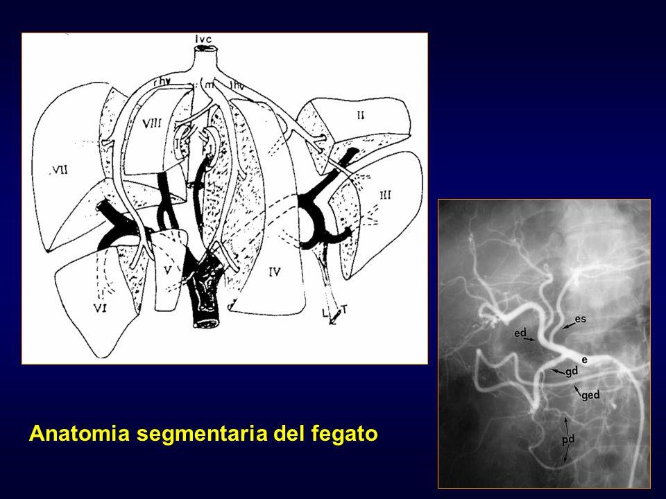 Anatomia segmentaria del fegato