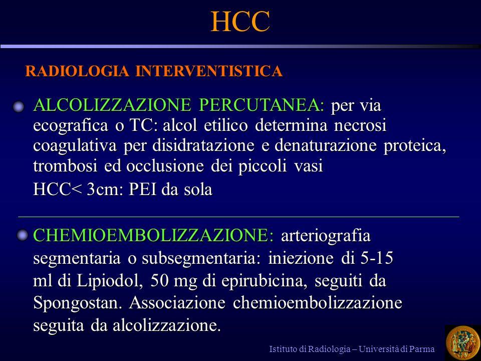 HCC RADIOLOGIA INTERVENTISTICA.