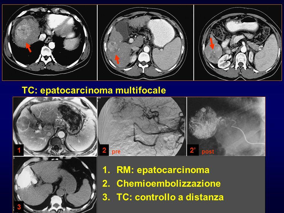 TC: epatocarcinoma multifocale