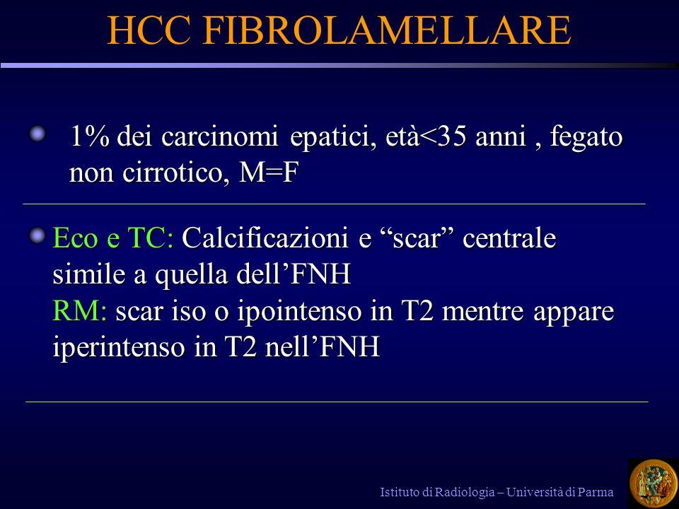 HCC FIBROLAMELLARE 1% dei carcinomi epatici, età<35 anni , fegato non cirrotico, M=F.