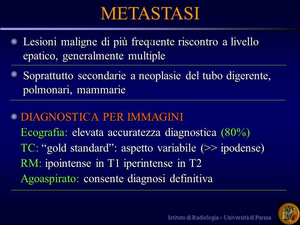 METASTASI \ Lesioni maligne di più frequente riscontro a livello epatico, generalmente multiple.