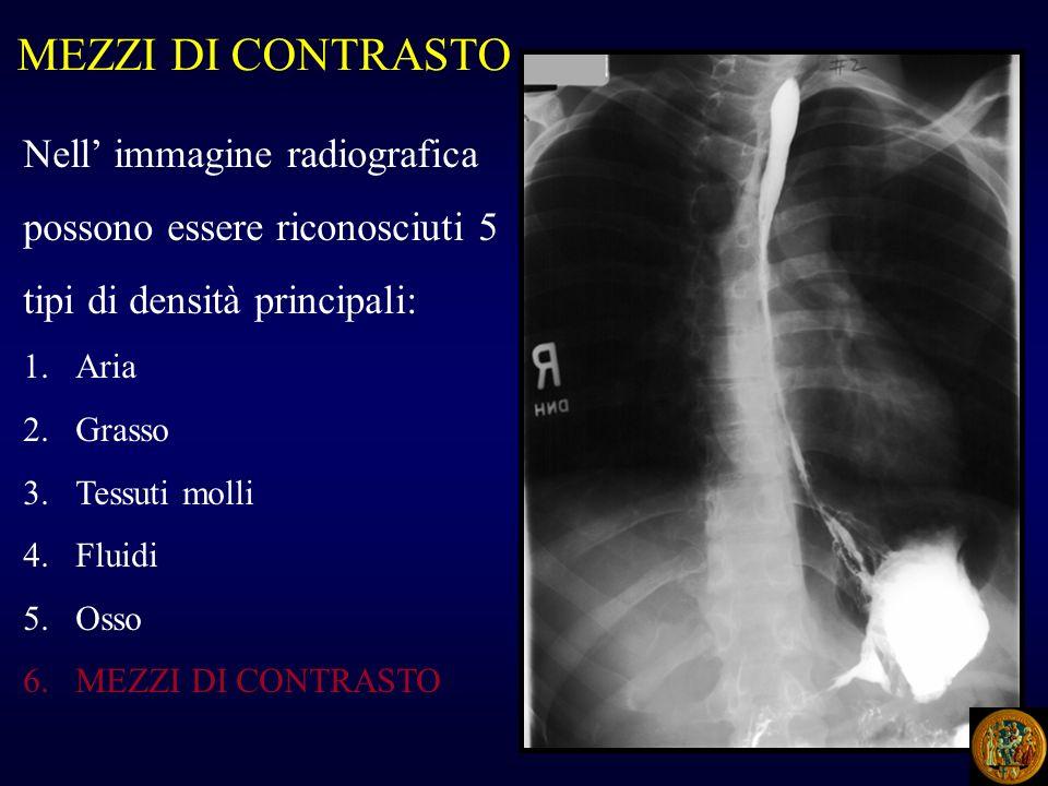 MEZZI DI CONTRASTO Nell' immagine radiografica