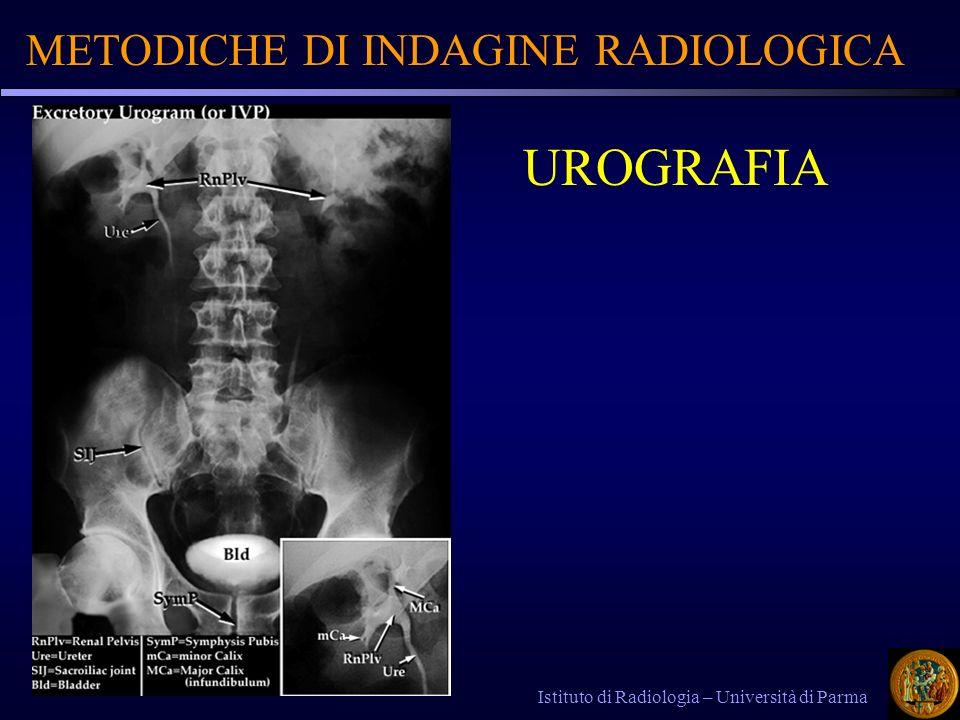 UROGRAFIA METODICHE DI INDAGINE RADIOLOGICA