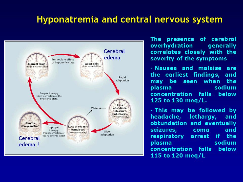 Hyponatremia and central nervous system