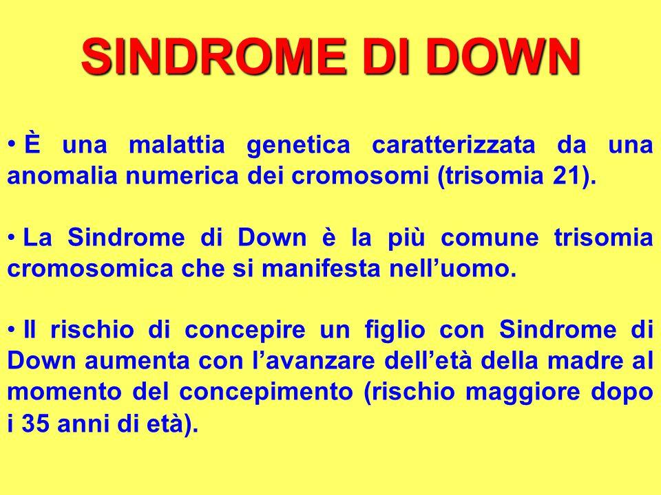 SINDROME DI DOWN È una malattia genetica caratterizzata da una anomalia numerica dei cromosomi (trisomia 21).