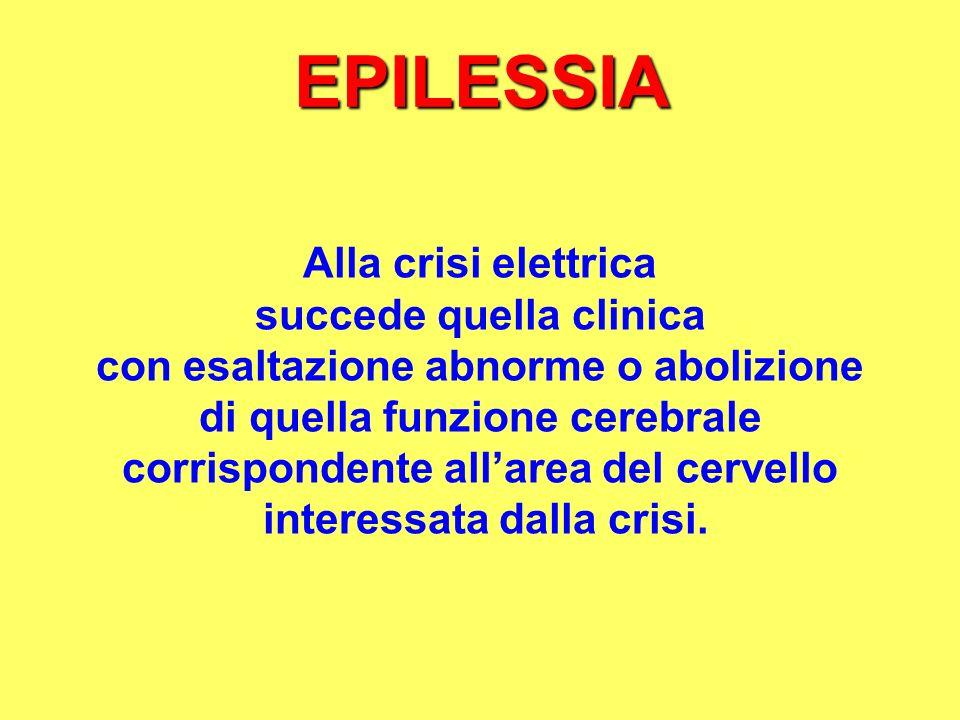 EPILESSIA Alla crisi elettrica succede quella clinica