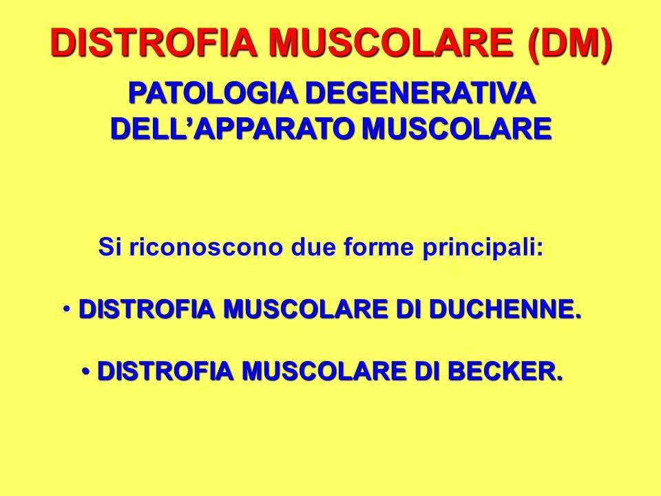 DISTROFIA MUSCOLARE (DM)