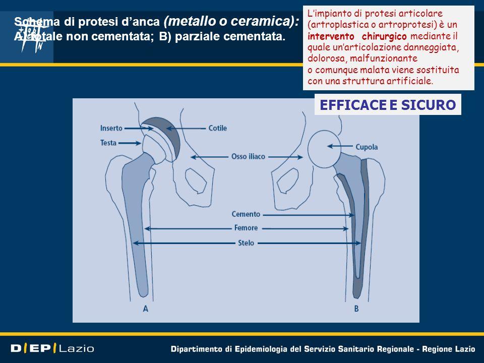 EFFICACE E SICURO Schema di protesi d'anca (metallo o ceramica):