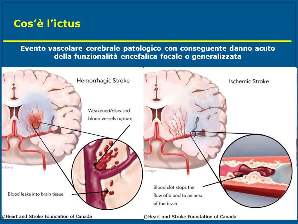 Cos'è l'ictus Evento vascolare cerebrale patologico con conseguente danno acuto.