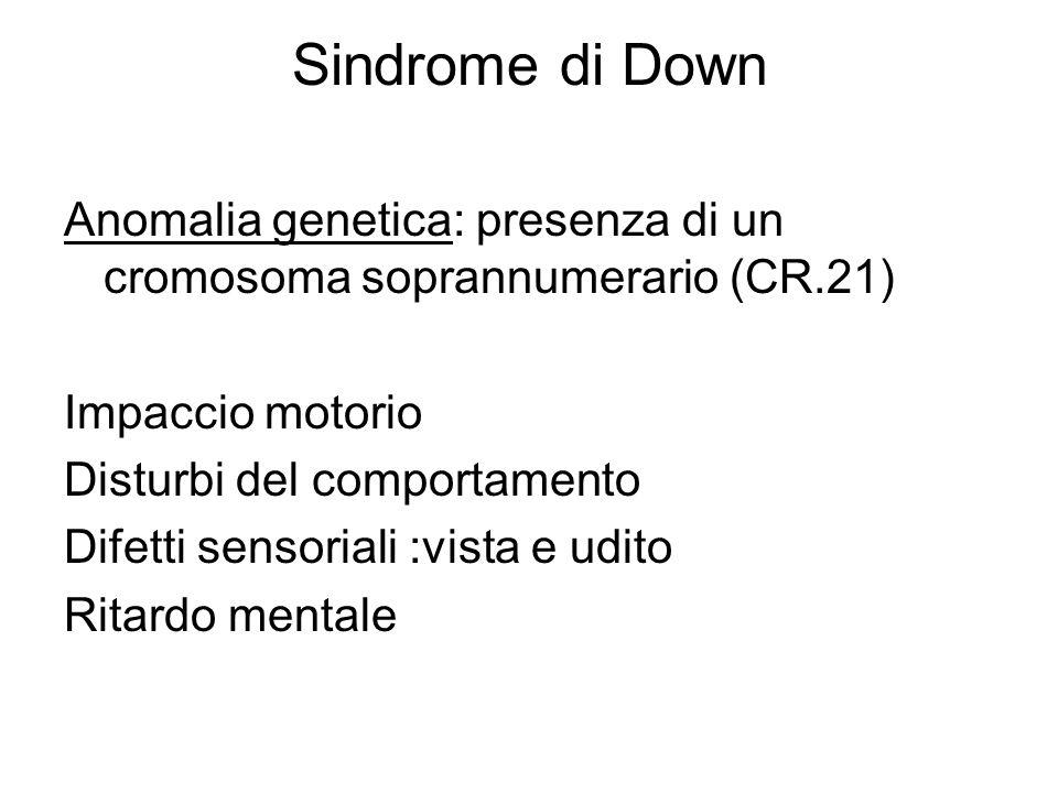 Sindrome di Down Anomalia genetica: presenza di un cromosoma soprannumerario (CR.21) Impaccio motorio.
