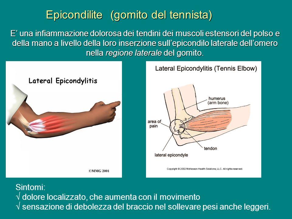 Epicondilite (gomito del tennista)